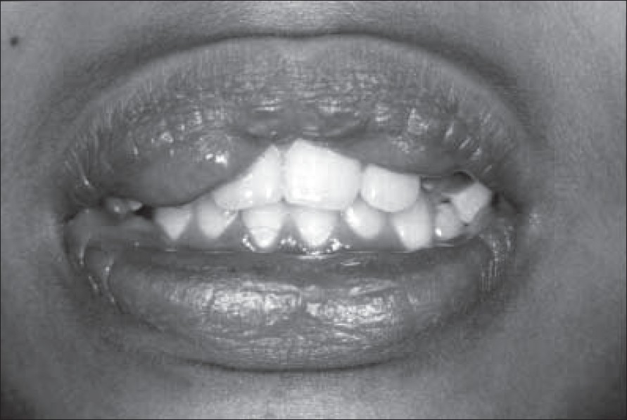 Figure 1: Clinical photograph showing bilateral maxillary double lip