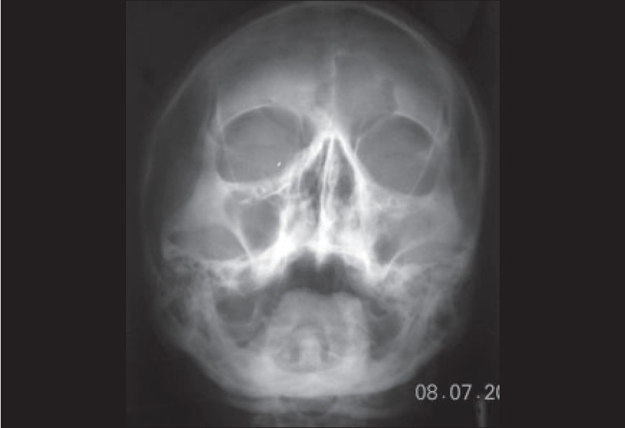 Figure 3: PNS view . showing left maxillary sinus opacification