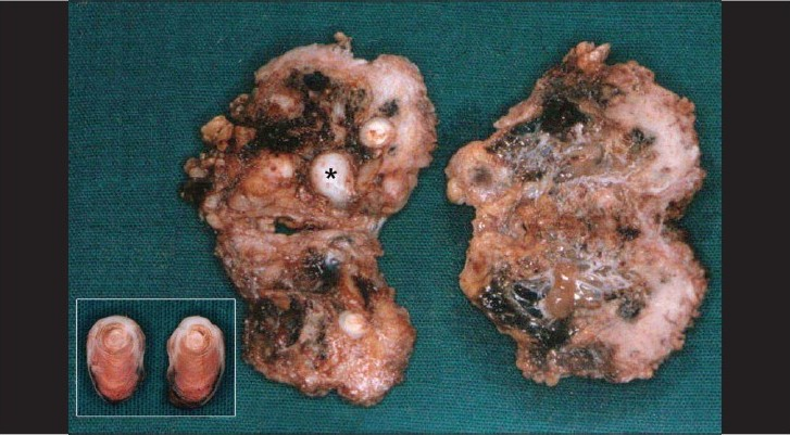 Figure 4: Surgical specimen showing multiple cystlike spaces separated by thin fibrous septae; inset shows calcification in concentric laminations