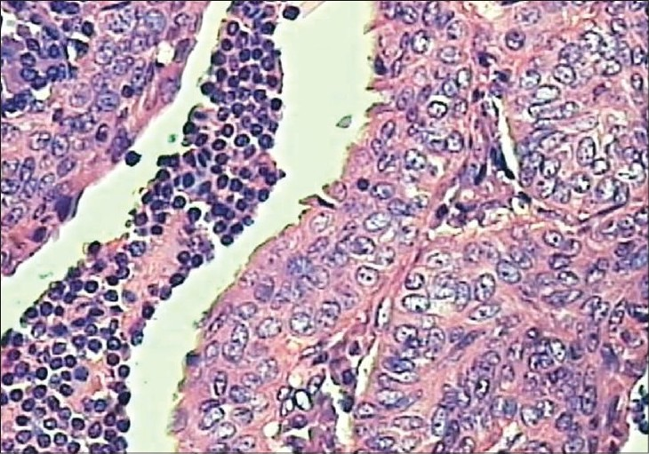 Figure 2: Transitional zone showing squamous metaplasia of the lining epithelium and invasion of squamous cells into lymphoid stroma (H and E, 10x)