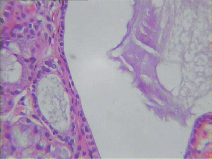Figure 2: Photomicrograph depicting the histopathological features of ranula (H and E, �)