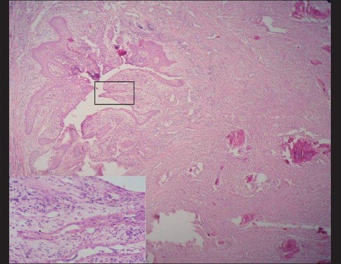 Figure 12 :Hematoxylin and eosin-stained section (4×) showing dentigerous cyst in the mandibular left quadrant in continuity with the connective tissue stroma having cemental masses. Inset shows higher magnification (40×) of the cyst epithelium resembling the reduced enamel epithelium