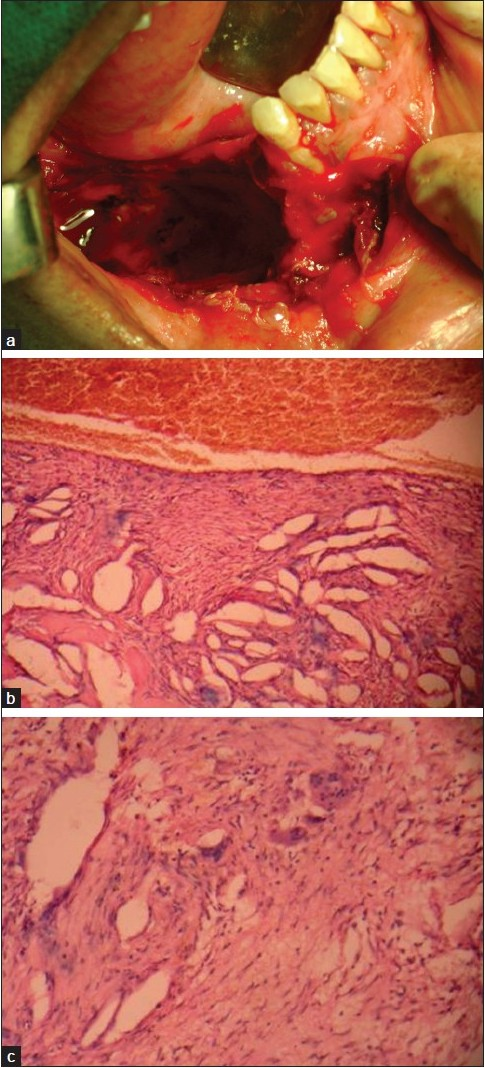 Figure 2: (a) Intraoperative photograph after the curettage; (b) photomicrograph of the lesion showing numerous vascular spaces lined by endothelial cells and multinucleated giant cells (H and E, 10×); (c) photomicrograph showing multinucleated giant cells in the fibrous tissue (H and E, 40×)