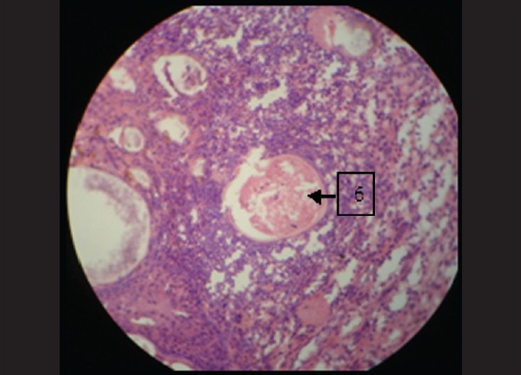Figure 6: Globular cysts surrounded by heavy inflammatory cells