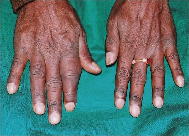 Figure 2: Swelling on the right index finger