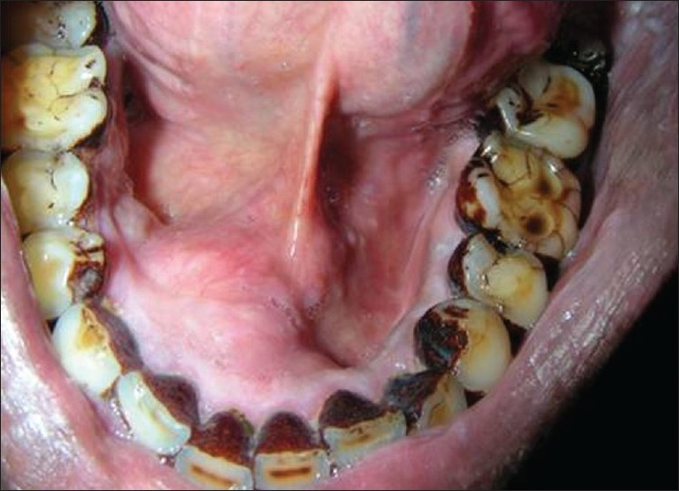 Figure 2: Swelling of approximately 3 cm in diameter on the lingual aspect of mandible on the right side, extending from 32 to 44