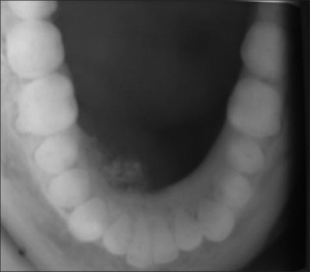 Figure 4: Mandibular occlusal radiograph reveals diffuse foci of radiopacities scattered in a radiolucent area with expansion of lingual cortical plate