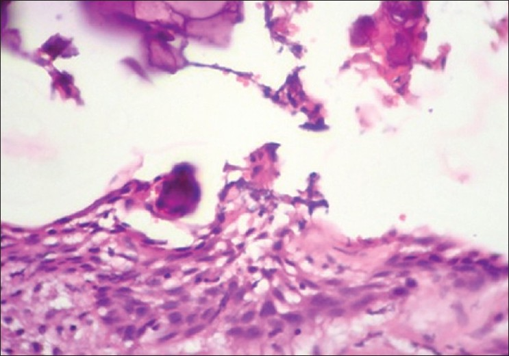 Figure 12: Calcifying epithelial odontogenic cyst. 10× Microwave processed