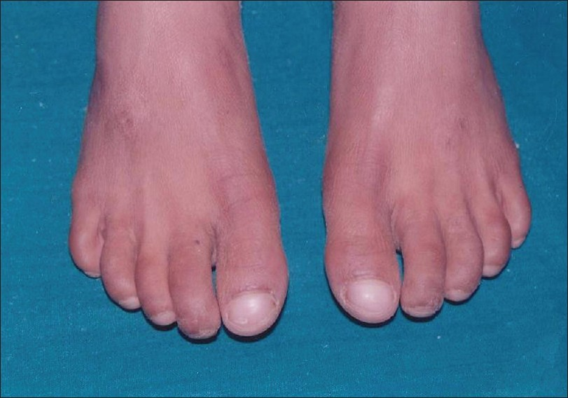 Figure 3: Feet showing dry skin and dystrophic nails