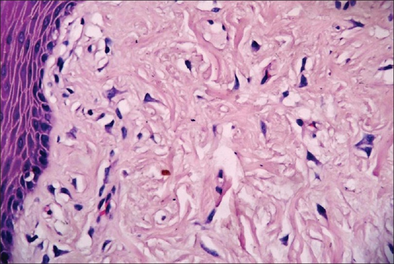 Giant cell fibroma | DermNet New Zealand