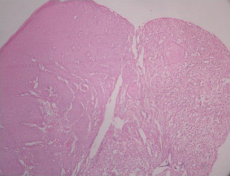 Figure 2: Histopathological examination of the lesion of the patient in the case report revealing a stratified squamous epithelium and few areas of keratin pearl formation (H and E stain, 4×)