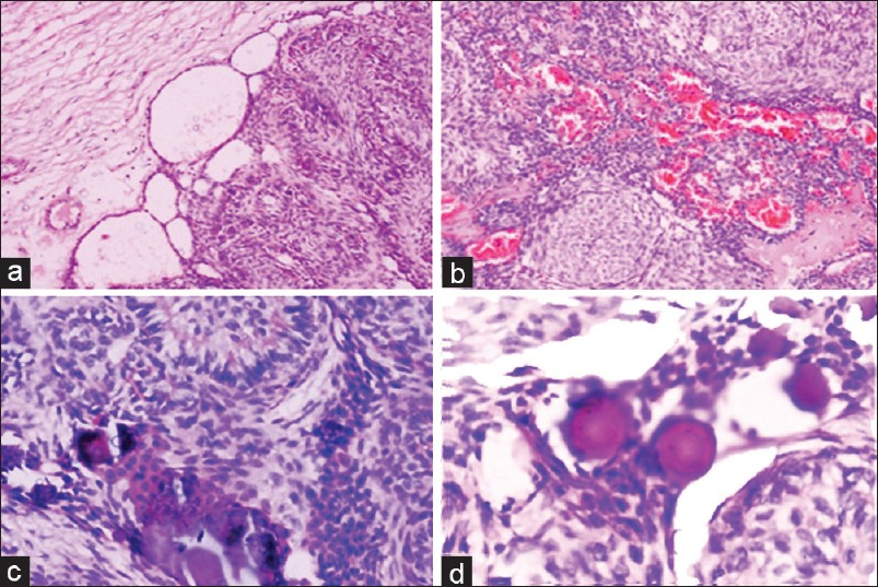 Adenomatoid odontogenic tumor: A unique report with ...