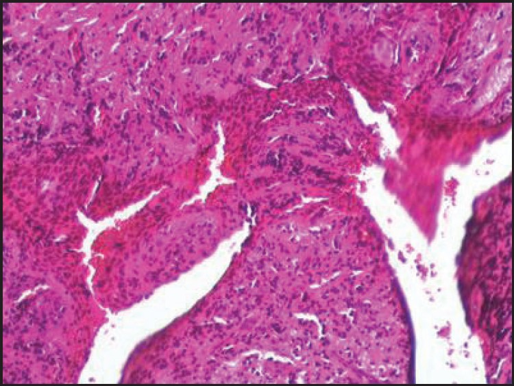 Figure 6: Epithelium showing hyperplasia with underlying connective tissue with inflammatory cells (H and E, 10×)