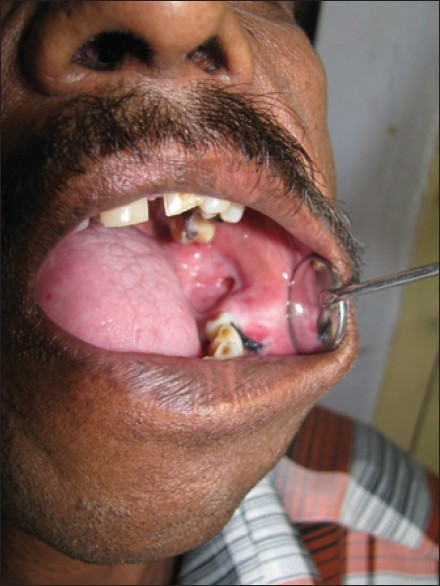 Figure 2: Clinical photograph - intraoral