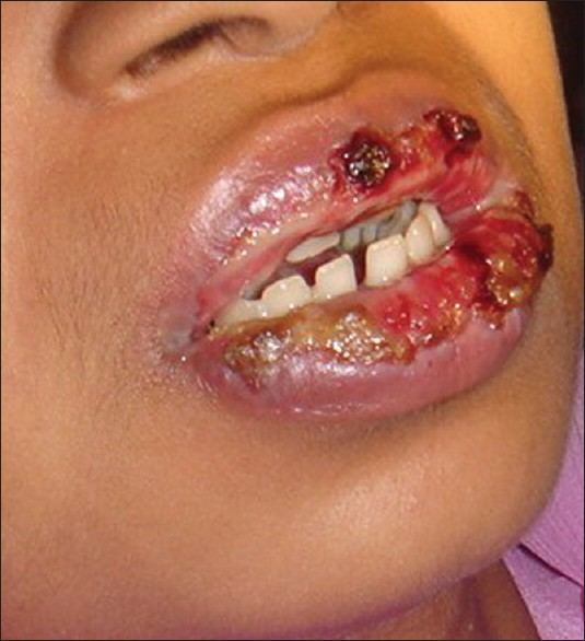 Figure 1: Case 1 irregular lip ulcerations with blood encrustations