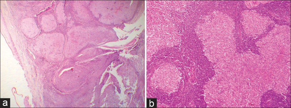Figure 4: (a) The overlying epithelium is seen separated from follicles. The histological picture in this view gives the impression of reactive follicular hyperplasia of the lymphoid tissue (H and E, stain; original magnification, ×2.5). (b) High-power view of the follicular pattern gives the impression of a reactive lesion (H and E, stain; original magnification, ×10)