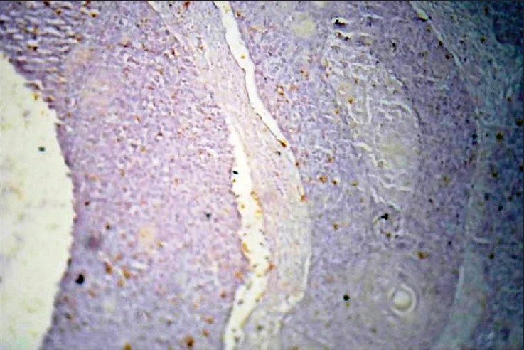 Figure 7: Poorly Differentiated OSCC with single palpable lymph node and surface area less than 8 cm2. 4 × Negative stain