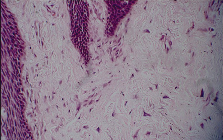 Giant cell fibroma | definition of giant cell fibroma by ...