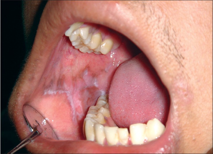 Figure 4: Clinical photograph showing reticular lichen planus of right buccal mucosa in a 14 year old male patient