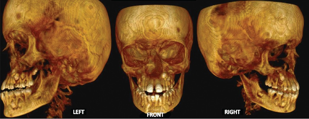 Parry Romberg syndrome: A case report and discussion