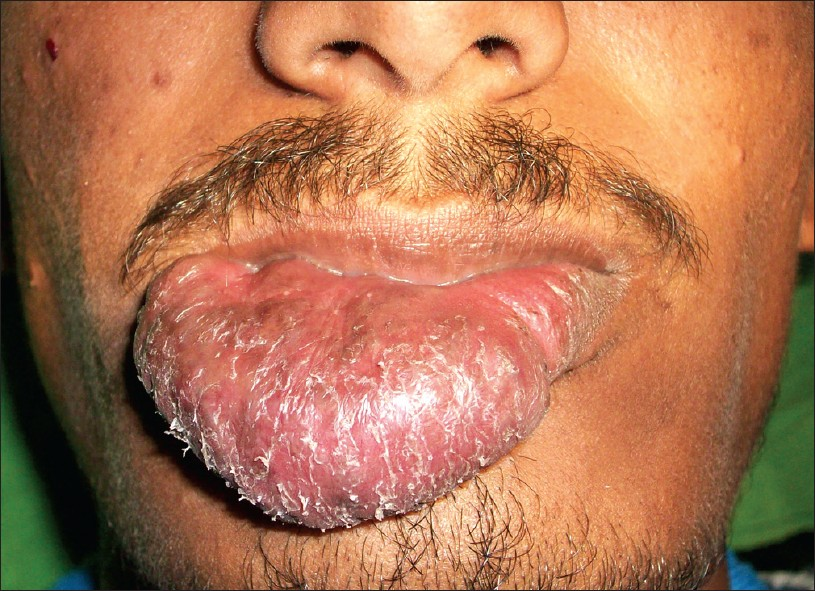 Figure 1: Clinical photograph showing giant swelling of the lower lip