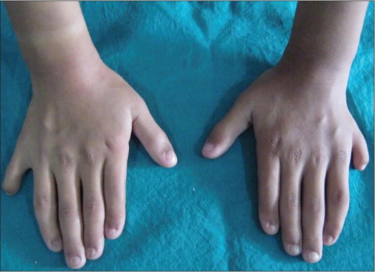 Figure 1: Hands revealing postaxial polydactyly