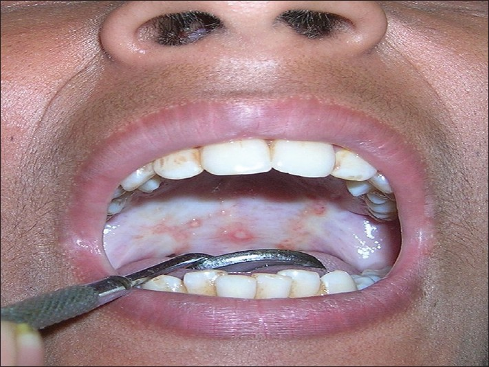 The gallery for --> Oral Submucous Fibrosis Blanching