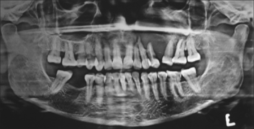 Figure 2: Orthopantomogram showing ill-defined radiolucent lesion i.r.t. right maxillary posterior region with displaced roots of the regional teeth