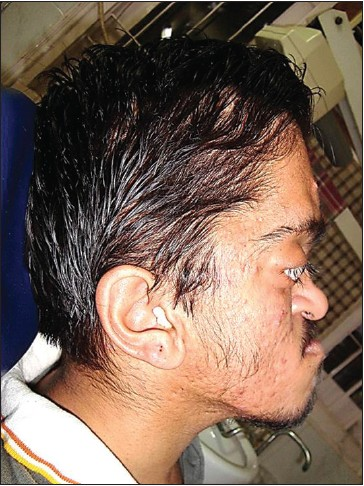 Figure 2: Extraoral lateral view of patient showing concave facial profile with mandibular prognathism and large, low set ears