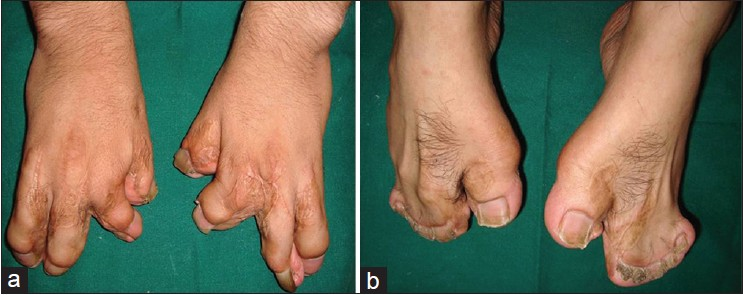 Figure 4: (a and b) Photographs showing surgically operated syndactyly in hands and syndactyly of feet