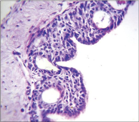 Figure 6: Photomicrograph showing numerous microcysts lined by eosinophilic cuboidal cells (H&E stain, x400)