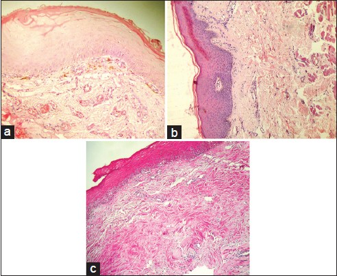 Figure 1: Photomicrographs of histological sections of (a) Early OSMF, (b) Moderately advanced OSMF (c) Advanced OSMF (H&E stain, ×100)