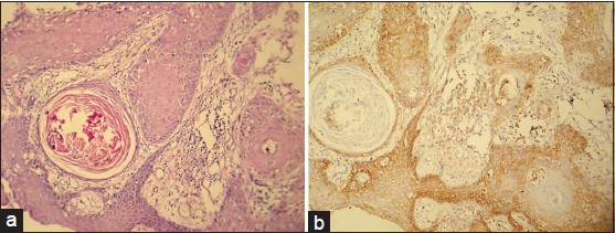 Figure 1: (a) Photomicrograph of well-differentiated sqamous cell carcinoma (H&E stain, ×100). (b) CD44s expression of the same. (IHC stain, x100)