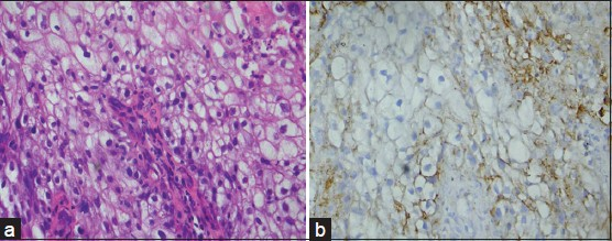 Figure 3: (a) Photomicrograph of poorly differentiated squamous cell carcinoma (H&E stain, x400). (b) CD44s expression of the same (IHC stain, x400)