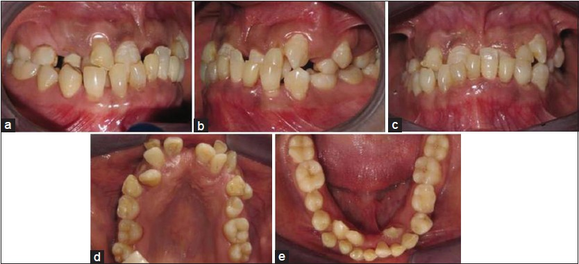 Figure 3: Intra oral photographs of patient showing class III malocclusion, reverse over jet, multiple retained deciduous teeth and malformation of permanent teeth