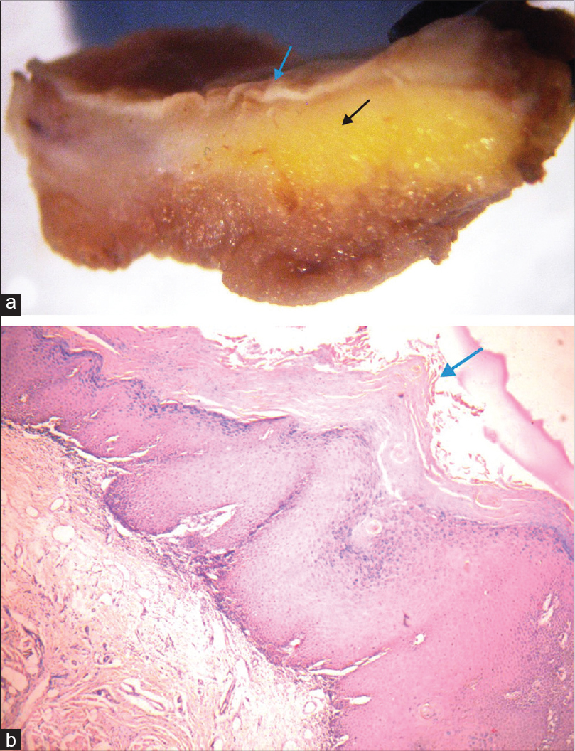 Figure 3: (a) Stereomicroscopic photograph of a lesion showing an overlying epithelium with surface irregularities (blue arrow) and a underlying connective tissue (black arrow). (b) Photograph