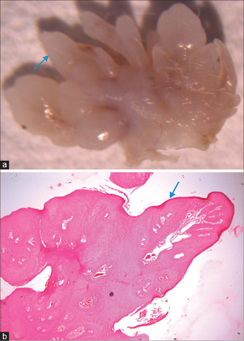 Figure 5: (a) Stereomicroscopic photograph showing whitish fi nger-like projections (blue arrow). (b) Photograph showing fi ngerlike projection lined by stratifi ed squamous epithelium (blue arrow) and thin connective tissue core (black arrow) (Hematoxylin and Eosin (H & E) stain, x40)
