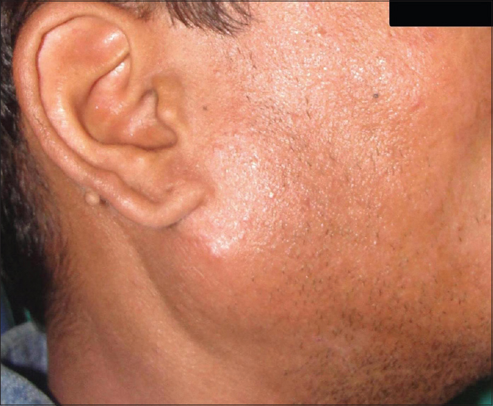Figure 2: Parotid swelling on right side