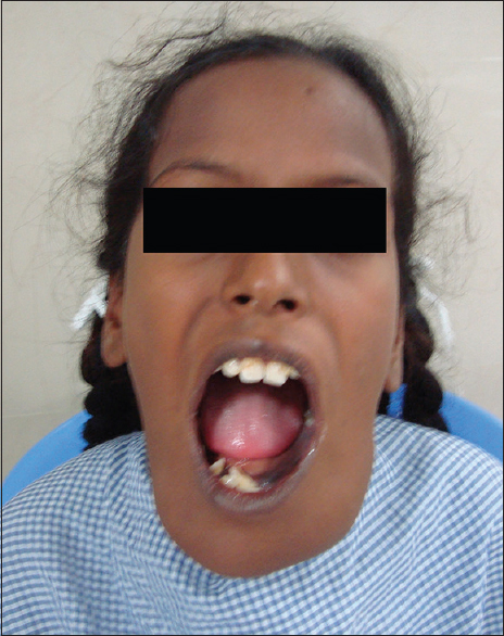 Figure 2: Intraoral view of the swelling