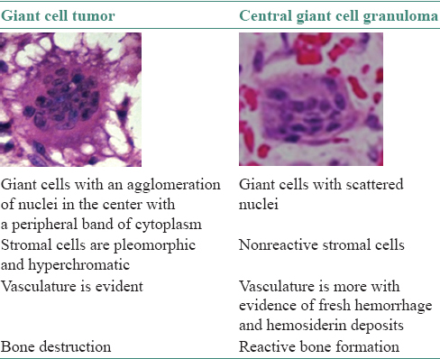 Table 1:Characteristic differences between giant cell tumor and central giant cell granuloma