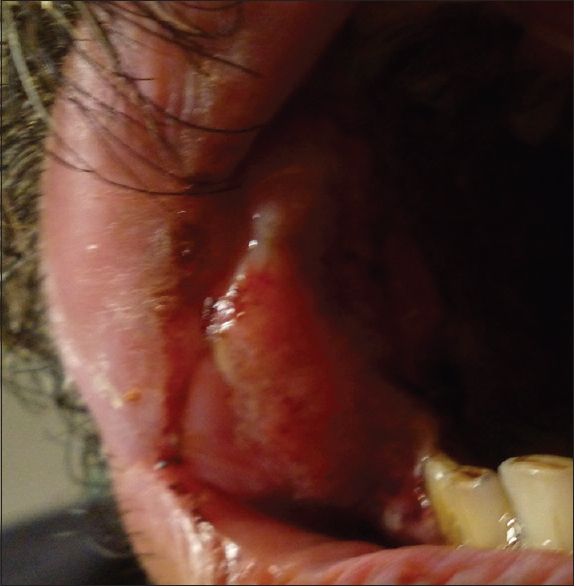 Figure 2: On intraoral examination, firm, nontender swelling with ill-defined borders measuring 3 cm × 3 cm was noted