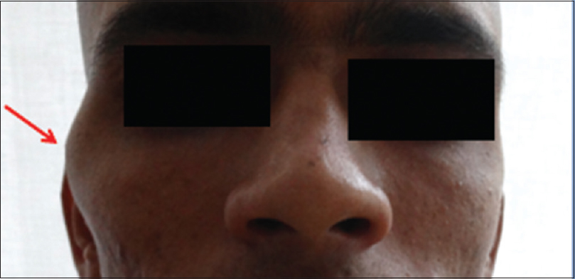 facial swelling Zygomatic