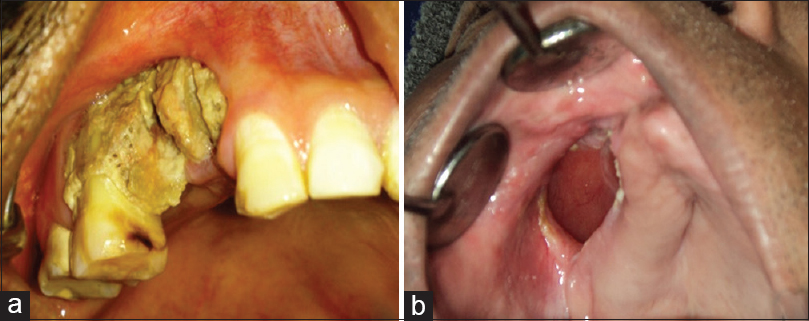 Pictures of oral antral fistula — photo 8