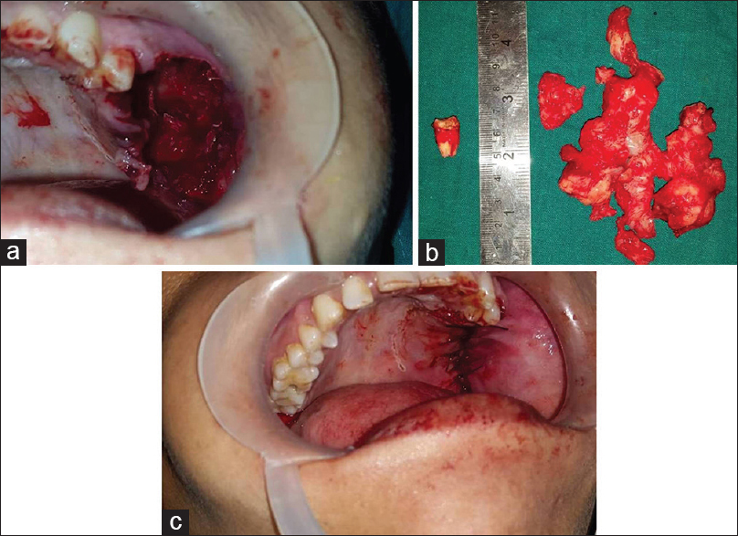 Figure 5: Surgical removal of the lesion; site after surgical excision, (a) excised specimen, (b) primary closure (c)