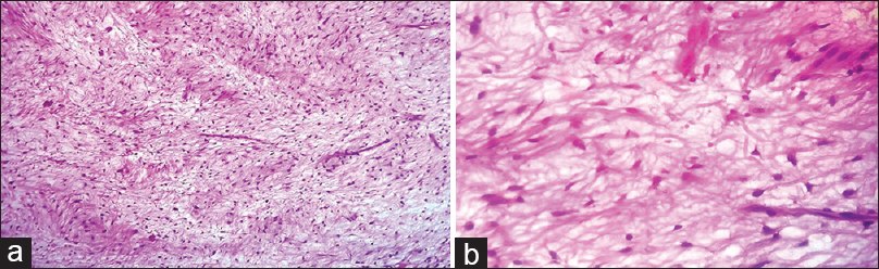 Figure 6: (a) underlying connective tissue stroma was composed of loose fibromyxoid stroma with stellate-shaped fibroblasts (H&E, ×10), (b) multiple fusiform plump and stellate shaped fibroblasts interspersed between thin collagen fiber bundles distributed in the myxomatous background (H&E, ×40)