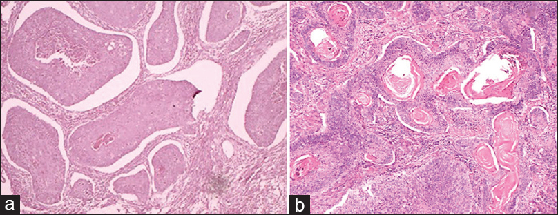 Figure 5: (a) Histopathological image shows epithelial islands showing arrangement in alveolar pattern with central area of degeneration and necrosis (H&E, ×40). (b) Histopathological image shows keratin pearl formation within some epithelial islands (H&E, ×40)