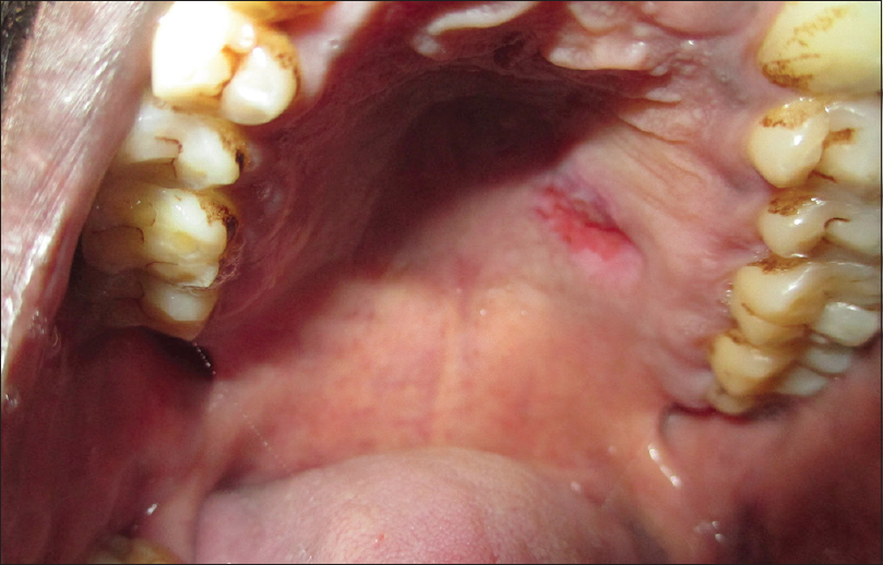 Hemangioendothelioma of palate: A case report with review of