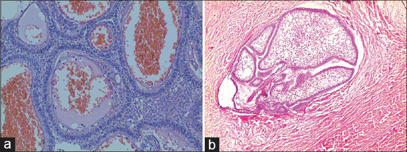 Figure 4: (a) Histopathological image shows odontogenic epithelium in plexiform pattern with reversal of polarity and cystic degeneration of adjacent stroma (H&E, ×40). (b) Histopathological image shows ameloblastic follicles with reversal of polarity of peripheral tall columnar cells and central stellate reticulum-like areas (H&E, ×40)