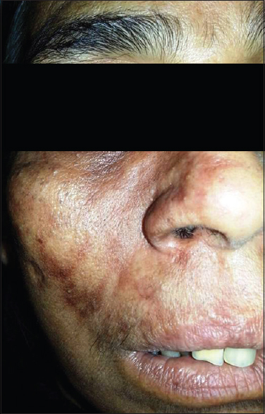 Figure 6: Photograph showing herpes zoster in an acquired immunodeficiency syndrome patient
