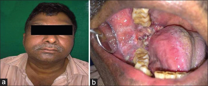 Basaloid squamous cell carcinoma: Report of two rare cases ...